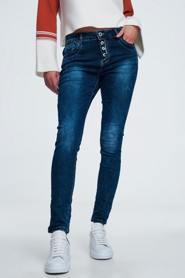 Blauwe jeans met knoopafsluiting